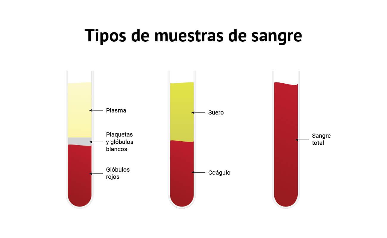 La diferencia entre suero, plasma y sangre total